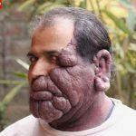 Indiano tenta se livrar de tumor facial e se casar